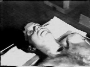 Jfk Autopsy Photos Pictures Head Shot Wounds John F